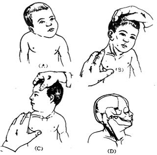 嬰兒斜頸1