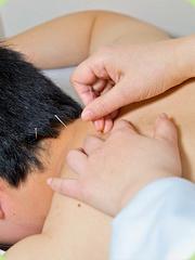 針灸也是一種物理治療 1