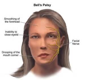 面癱後遺症 — 口眼聯動4