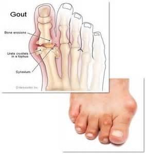 尿酸與腳痛