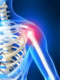 肩周炎是可以避免的
